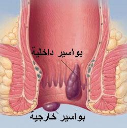 أنواع البواسير وعلاجها